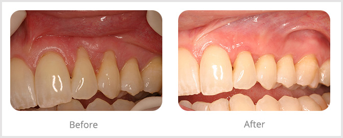 before and after photos raleigh periodontics and implant dentistry
