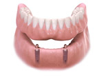 Multi-Tooth Implant